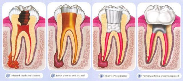 root_canal2